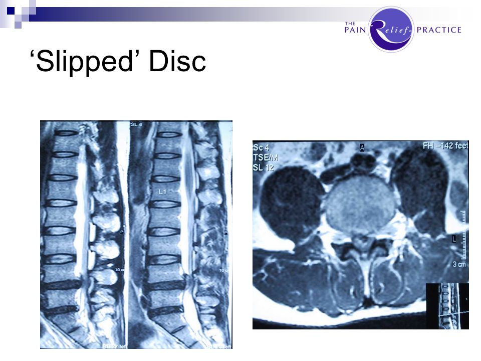 'Slipped' Disc