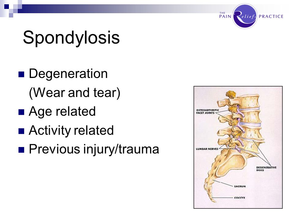 Spondylosis Degeneration (Wear and tear) Age related Activity related