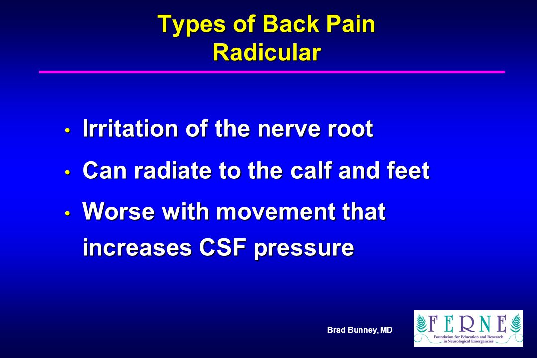 Types of Back Pain Radicular