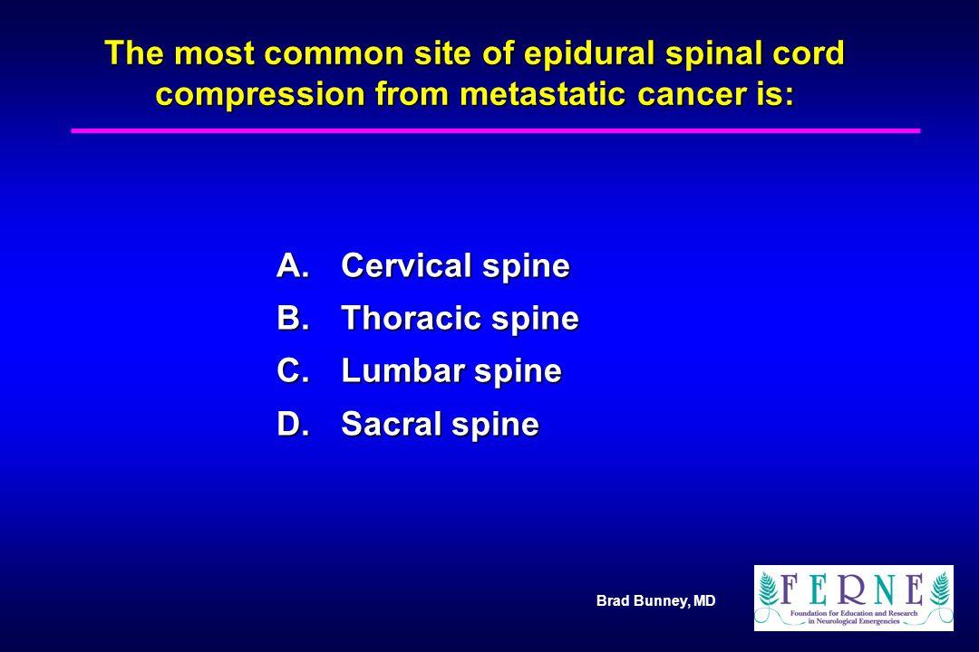 A. Cervical spine B. Thoracic spine C. Lumbar spine D. Sacral spine