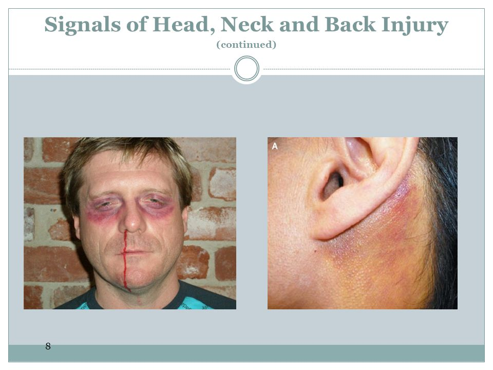 Signals of Head, Neck and Back Injury (continued)