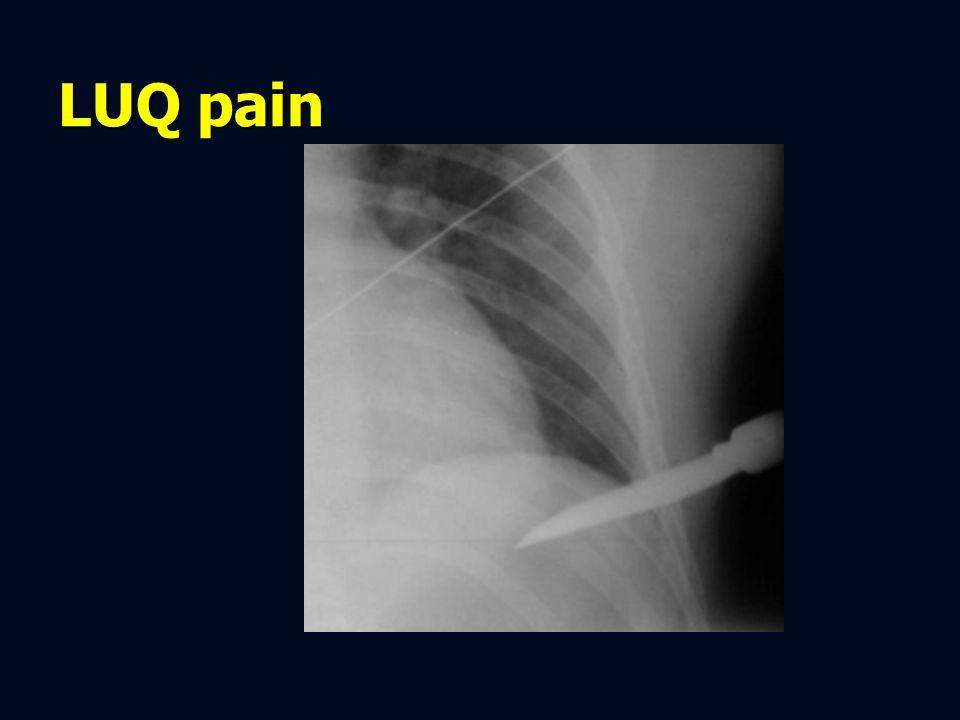 LUQ pain