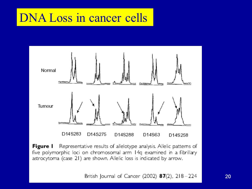 DNA Loss in cancer cells