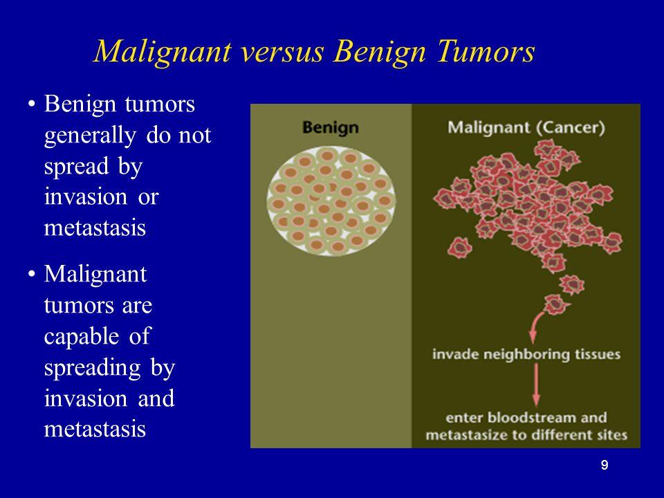 Malignant versus Benign Tumors