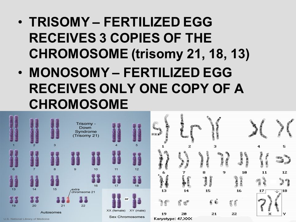 TRISOMY – FERTILIZED EGG RECEIVES 3 COPIES OF THE CHROMOSOME (trisomy 21, 18, 13)