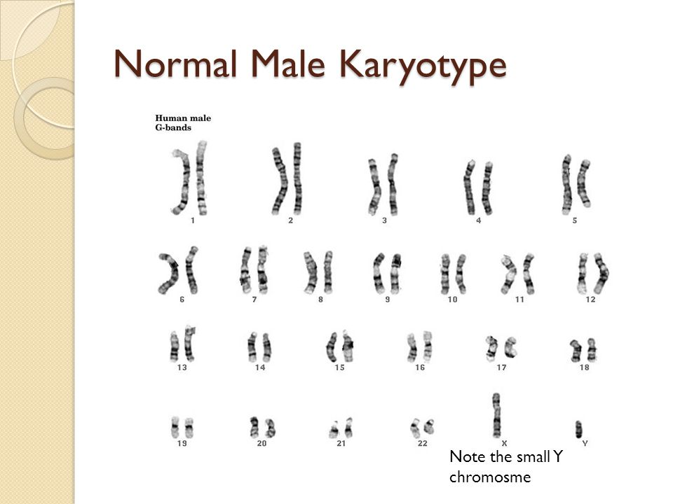 Normal Male Karyotype Note the small Y chromosme
