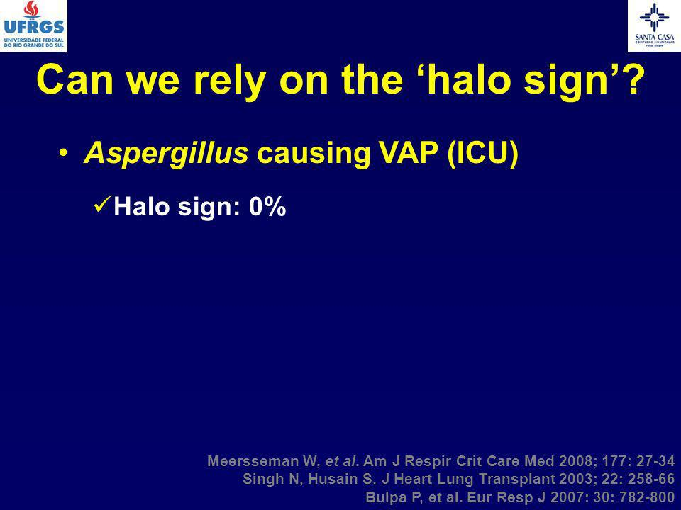 Can we rely on the 'halo sign'