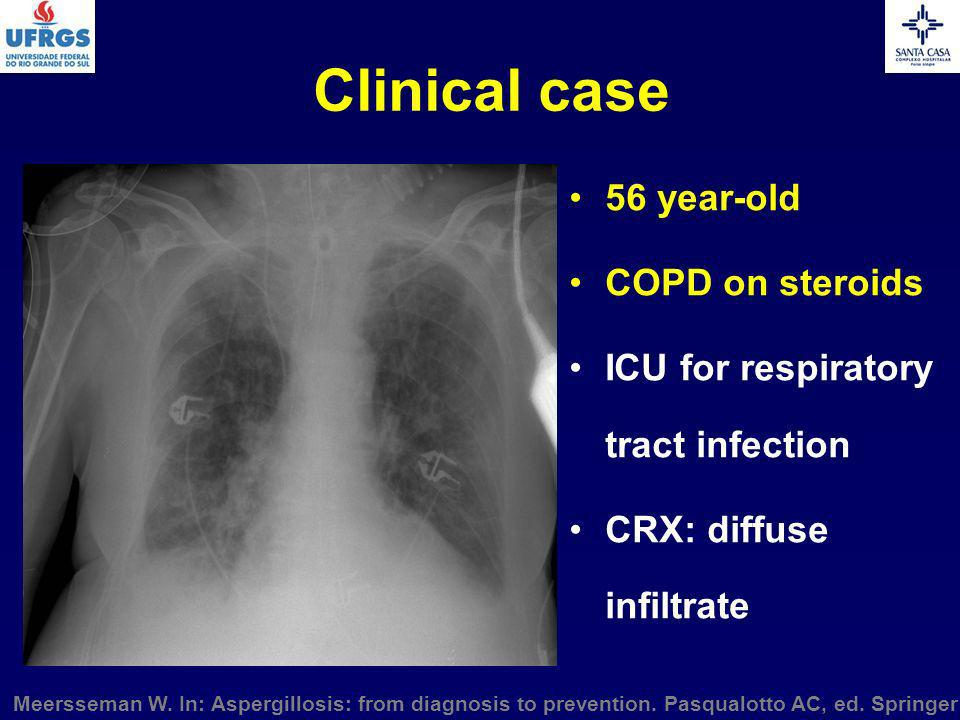 Clinical case 56 year-old COPD on steroids