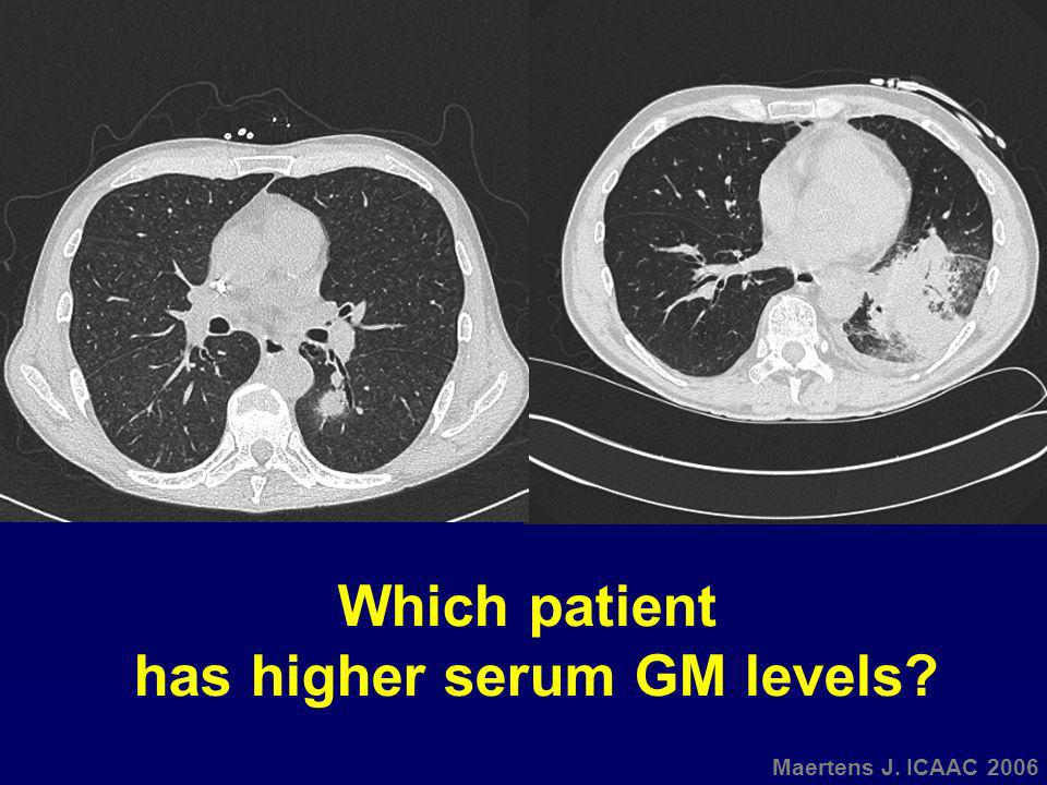 has higher serum GM levels