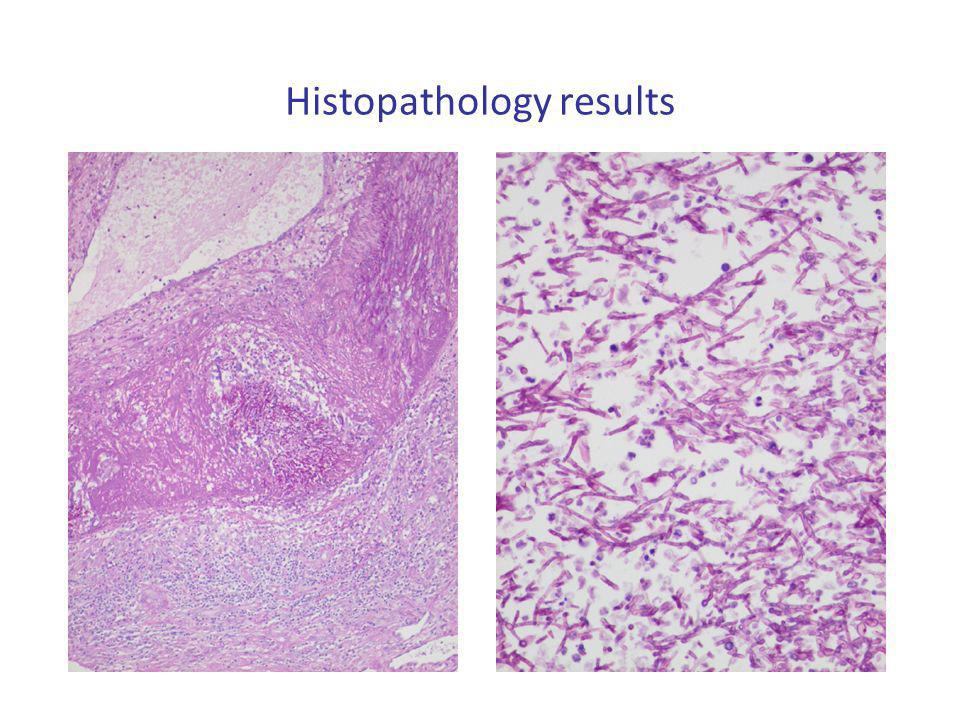 Histopathology results