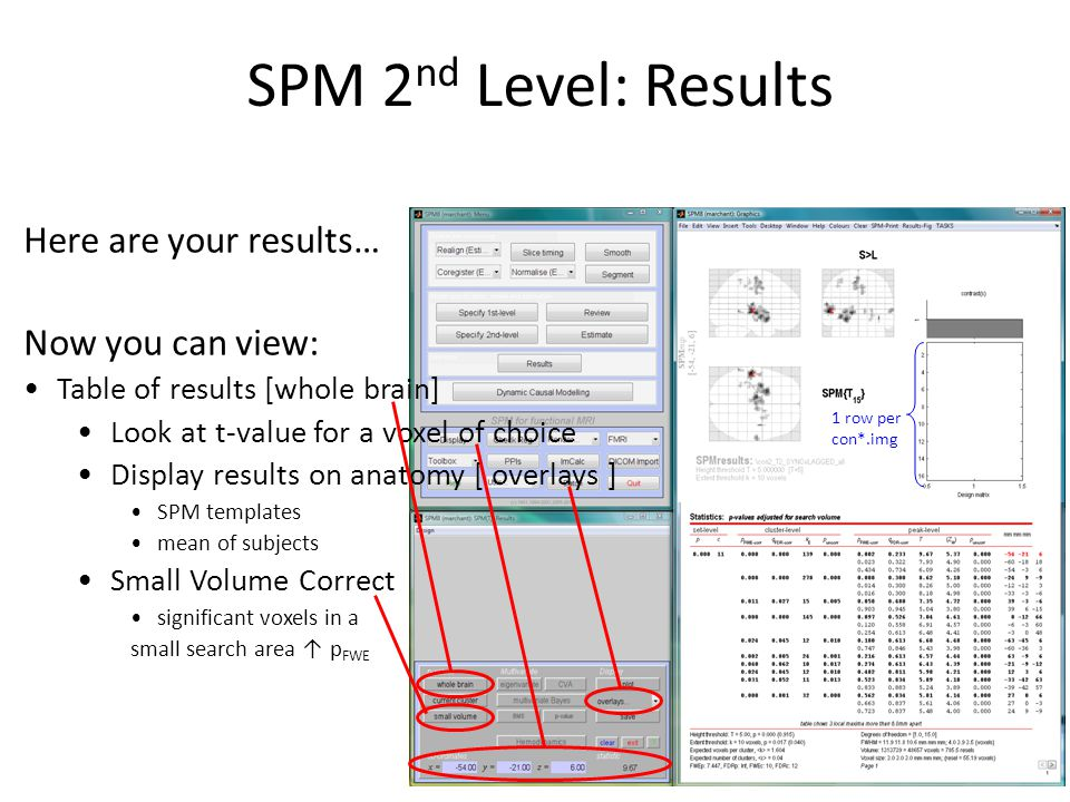 SPM 2nd Level: Results Here are your results… Now you can view:
