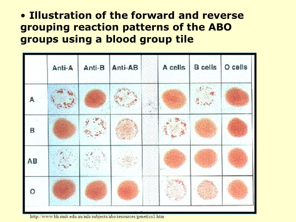 Illustration of the forward and reverse grouping reaction patterns of the ABO groups using a blood group tile