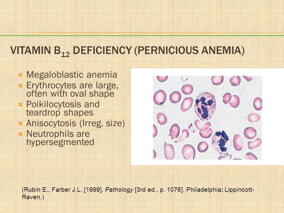 Vitamin B12 Deficiency (Pernicious Anemia)