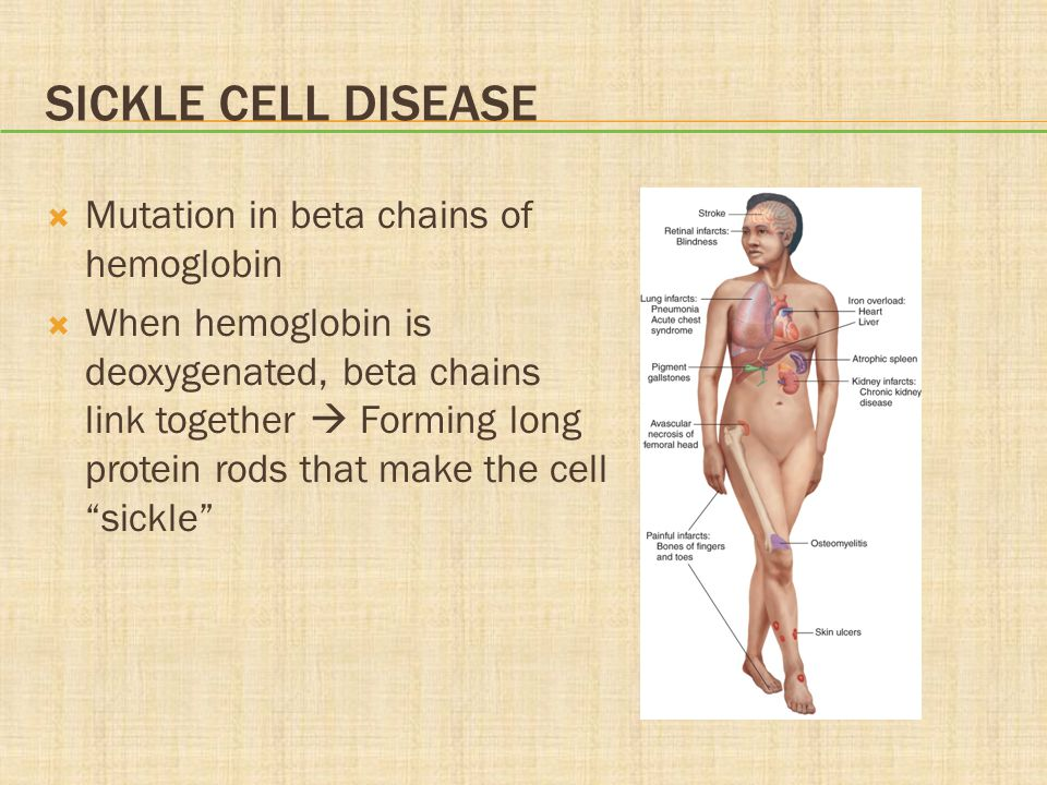 Sickle Cell Disease Mutation in beta chains of hemoglobin