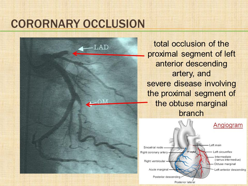 CORORNARY OCCLUSION total occlusion of the proximal segment of left anterior descending artery, and.