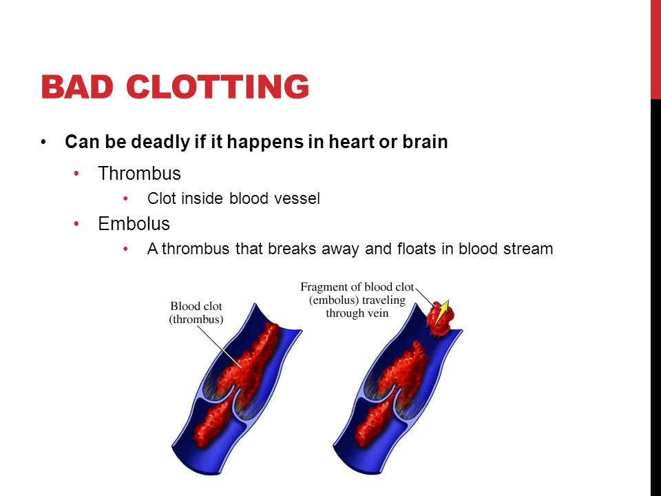 Bad clotting Can be deadly if it happens in heart or brain Thrombus