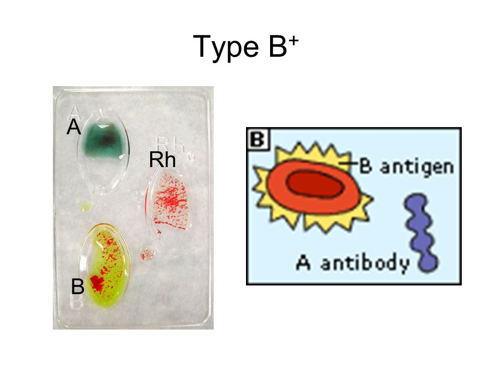 Type B+ A Rh B