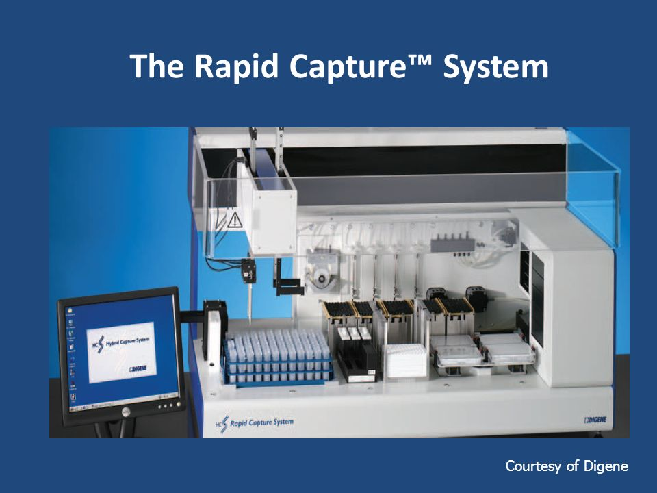 The Rapid Capture™ System