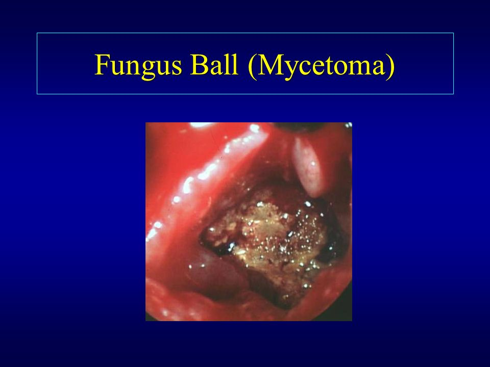 Fungus Ball (Mycetoma)