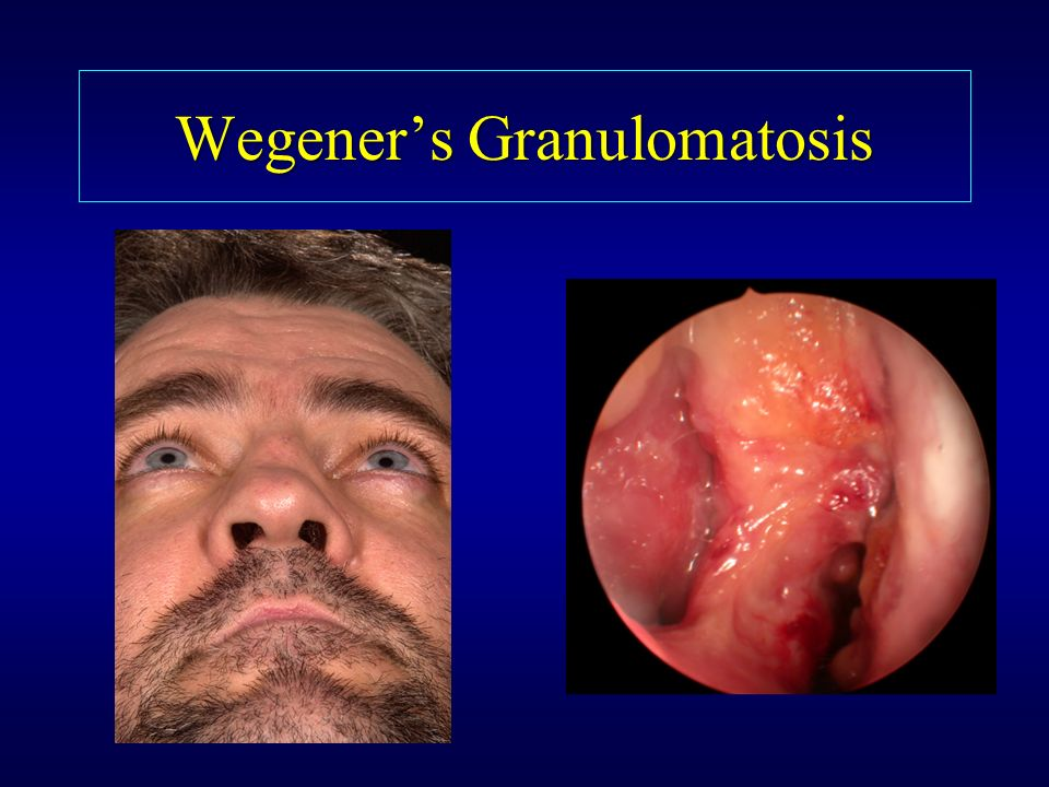 Differential Diagnosis Of Rhinosinusitis Ppt Video
