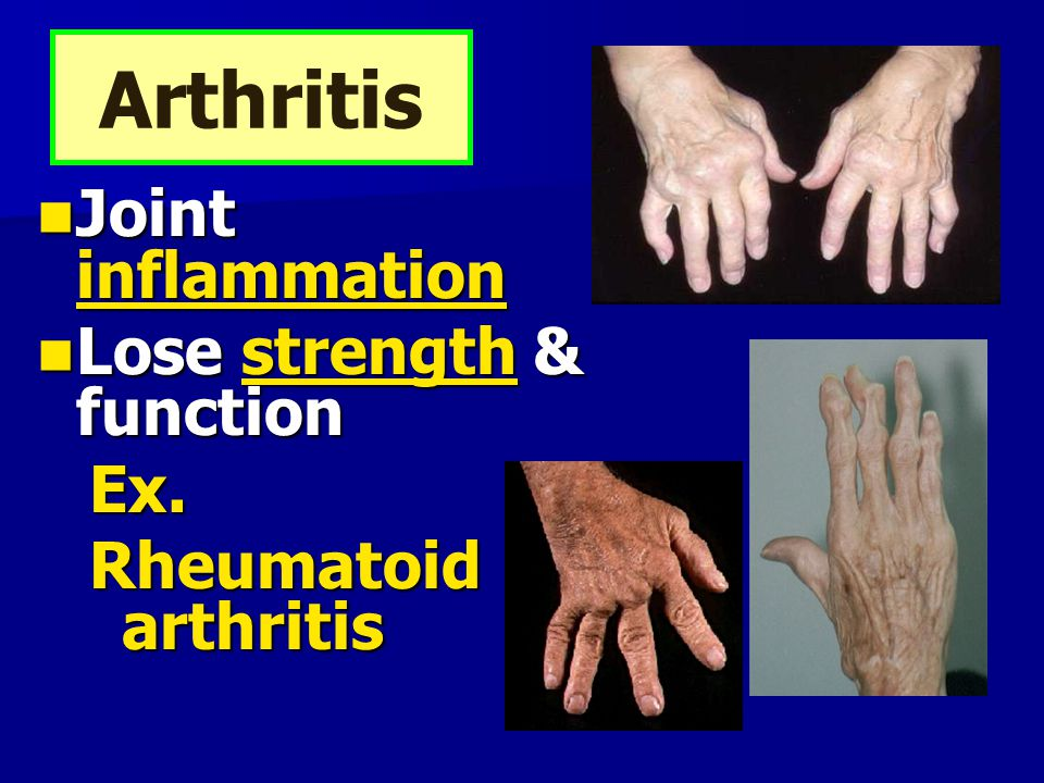Arthritis Joint inflammation Lose strength & function Ex.