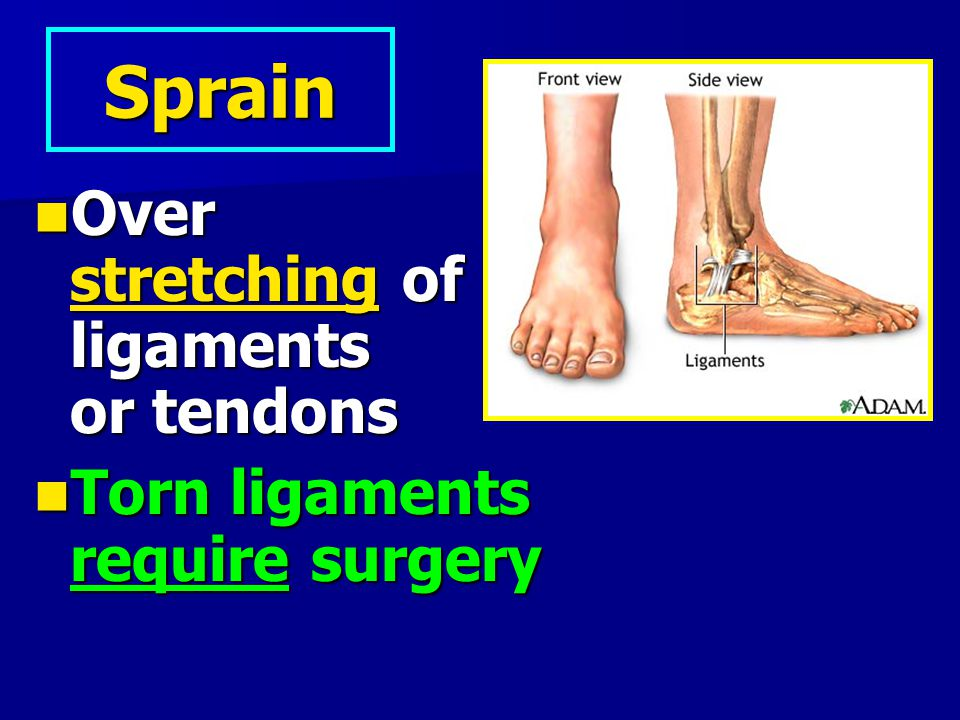 Sprain Over stretching of ligaments or tendons