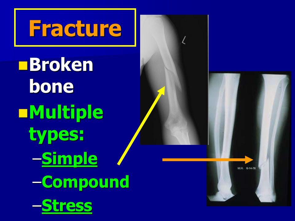 Fracture Broken bone Multiple types: Simple Compound Stress