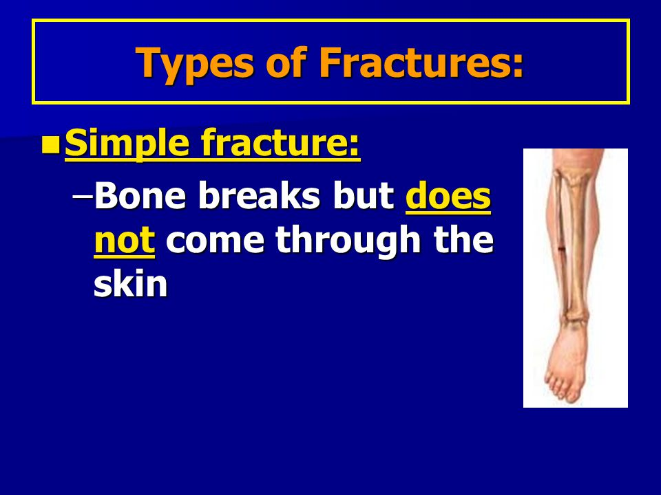 Types of Fractures: Simple fracture: