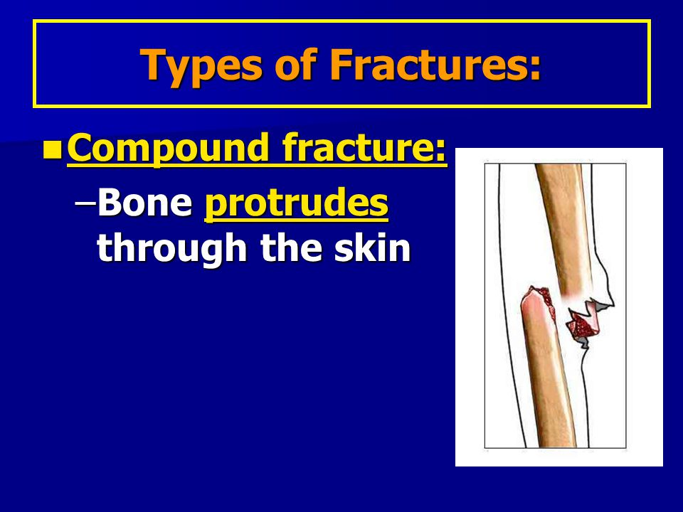 Types of Fractures: Compound fracture: Bone protrudes through the skin