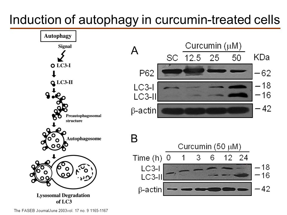 Induction of autophagy in curcumin-treated cells