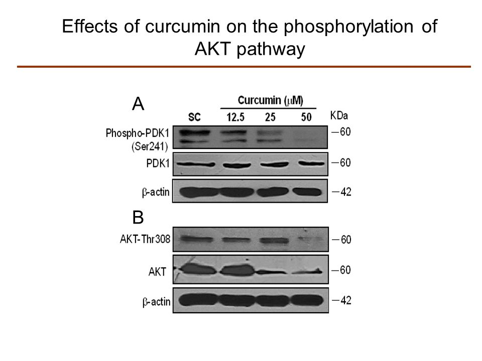 Effects of curcumin on the phosphorylation of AKT pathway