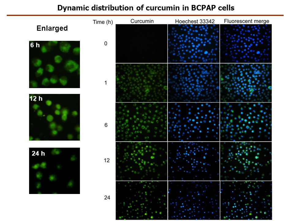 Dynamic distribution of curcumin in BCPAP cells