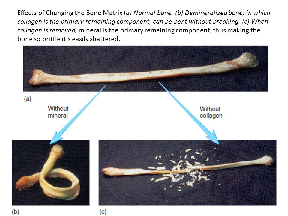 Effects of Changing the Bone Matrix (a) Normal bone