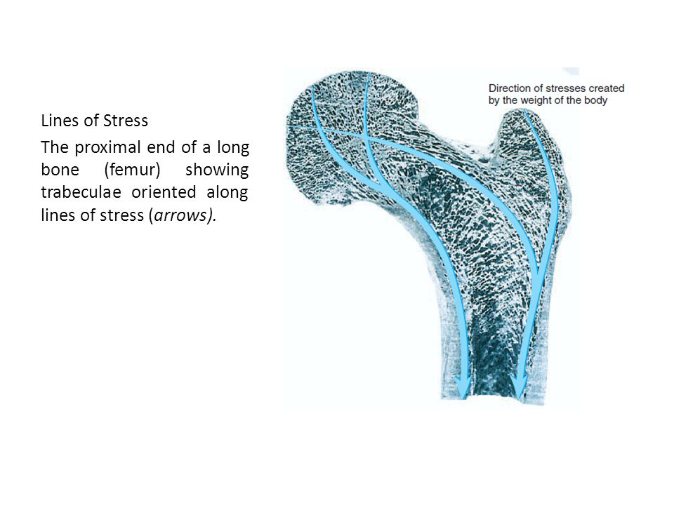 Lines of Stress The proximal end of a long bone (femur) showing trabeculae oriented along lines of stress (arrows).
