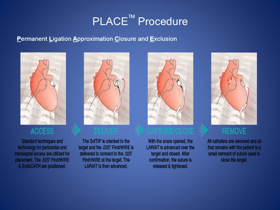 PLACETM Procedure Permanent Ligation Approximation Closure and Exclusion