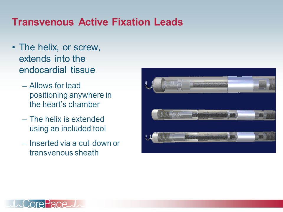 Transvenous Active Fixation Leads