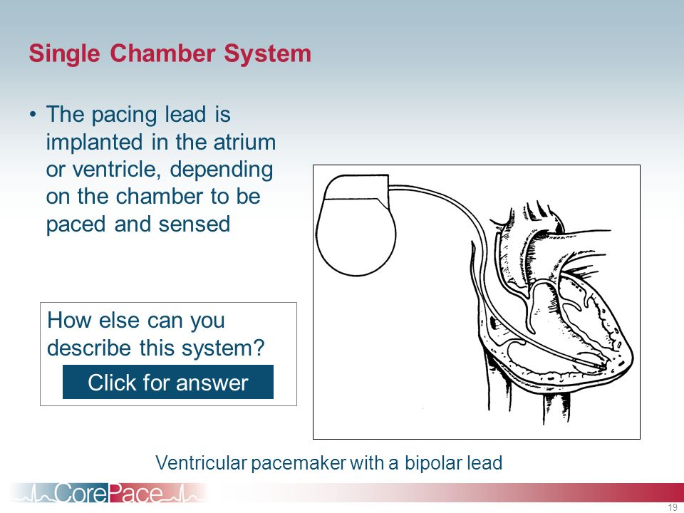 Single Chamber System The pacing lead is implanted in the atrium or ventricle, depending on the chamber to be paced and sensed.