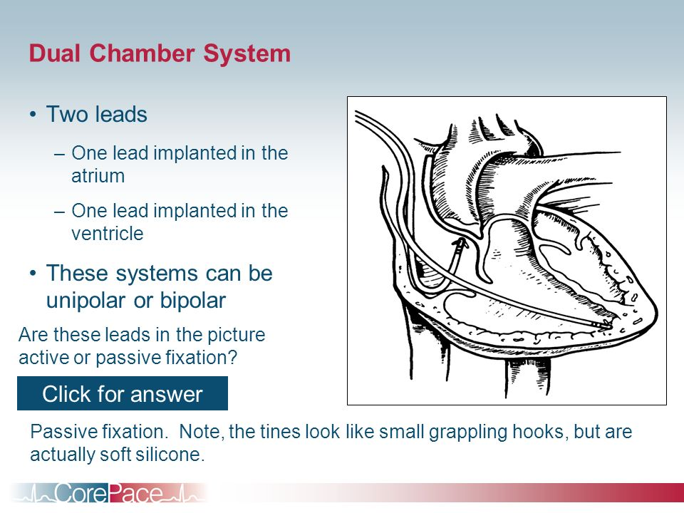 Dual Chamber System Two leads These systems can be unipolar or bipolar