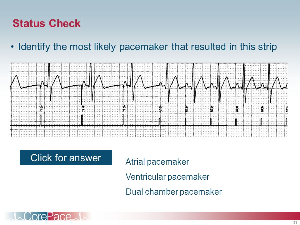 Status Check Identify the most likely pacemaker that resulted in this strip. Click for answer. Student Notes.