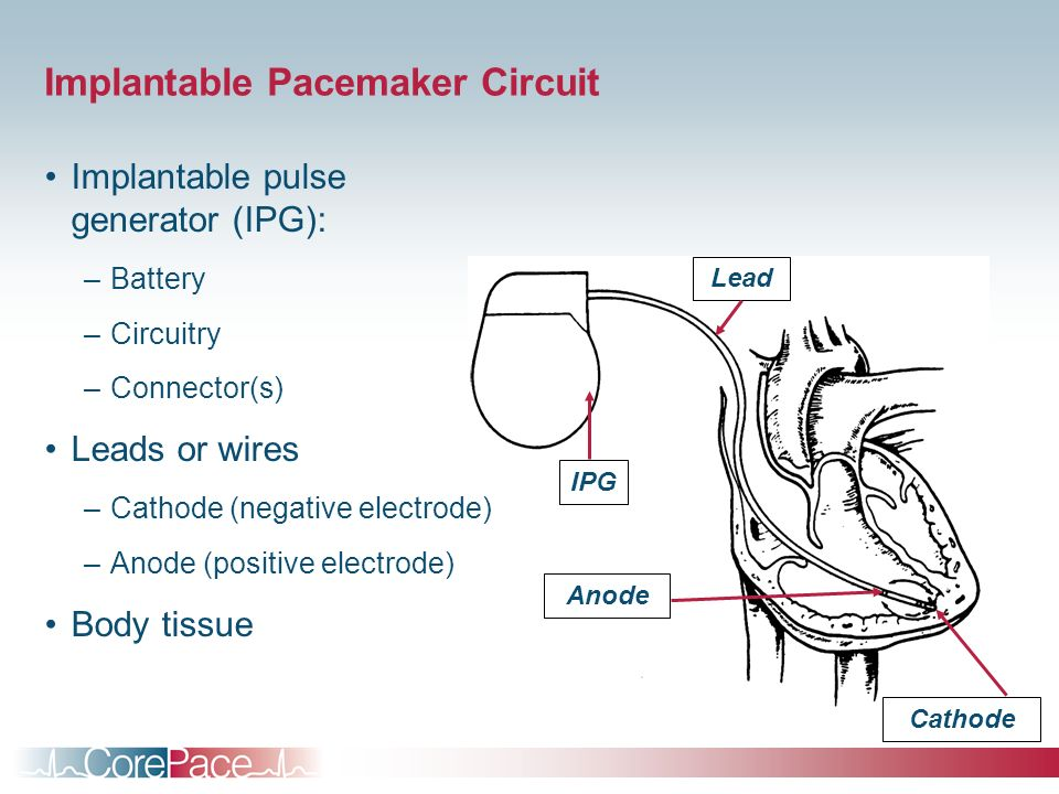 Implantable+Pacemaker+Circuit pacemaker basics module 5 ppt download