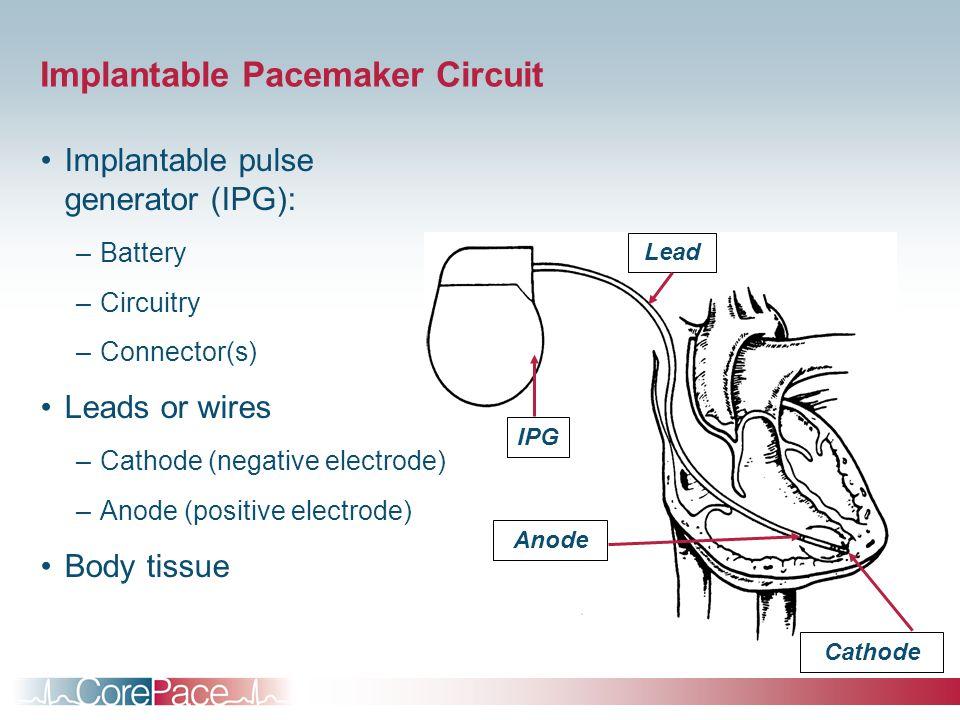 circuit diagram positive negative  | 960 x 720
