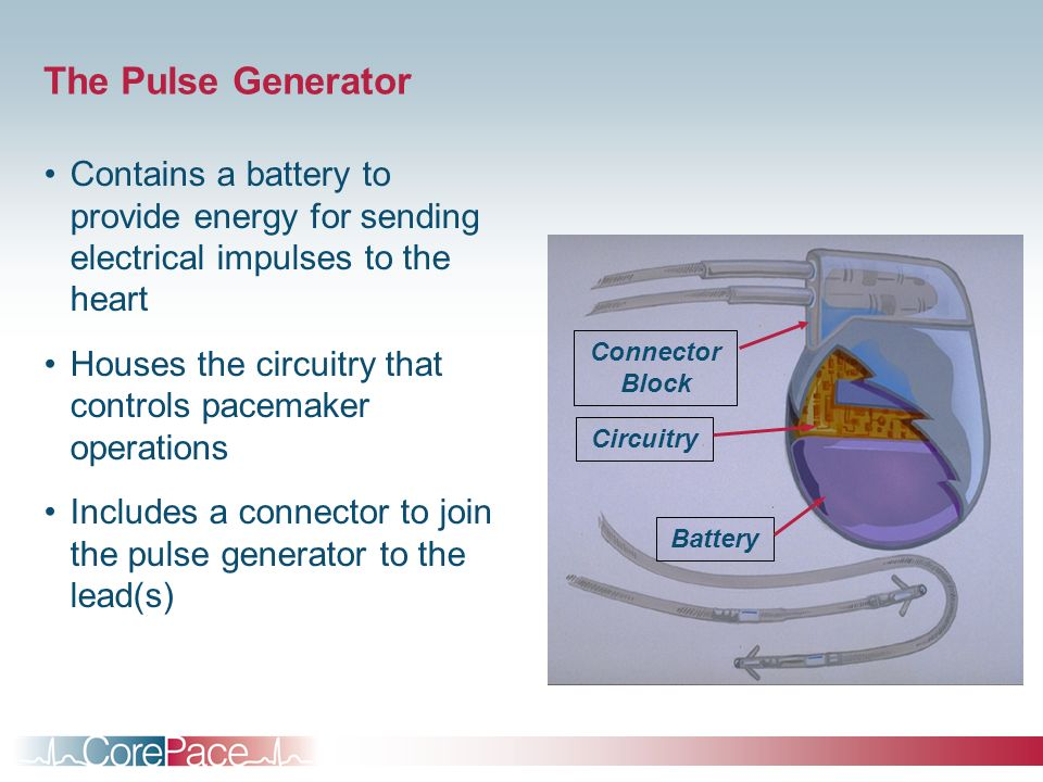 The Pulse Generator Contains a battery to provide energy for sending electrical impulses to the heart.