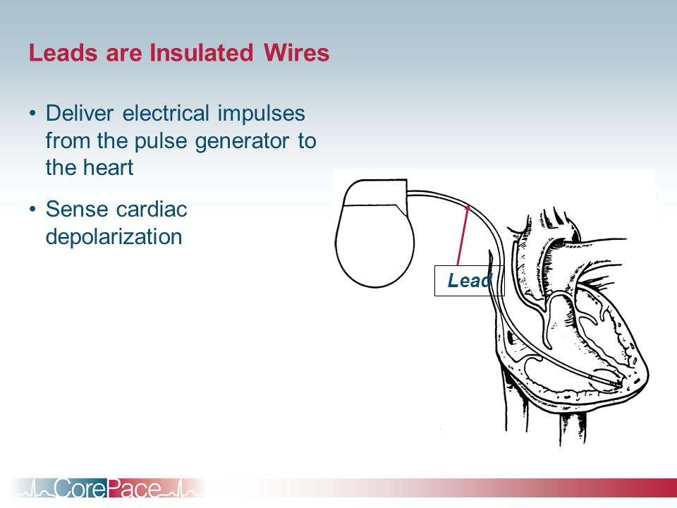 Leads are Insulated Wires