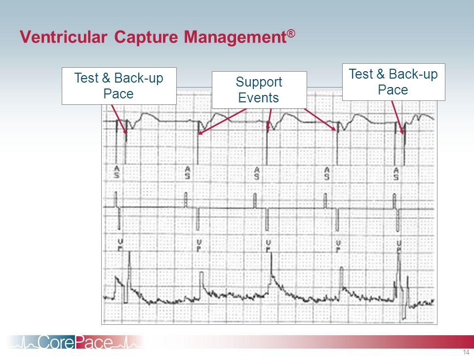 Ventricular Capture Management®