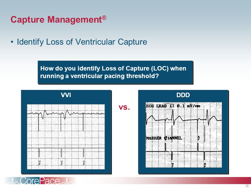 Capture Management® Identify Loss of Ventricular Capture vs.