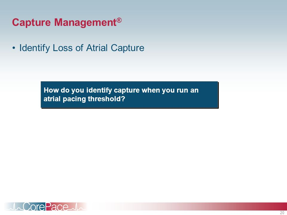 Capture Management® Identify Loss of Atrial Capture