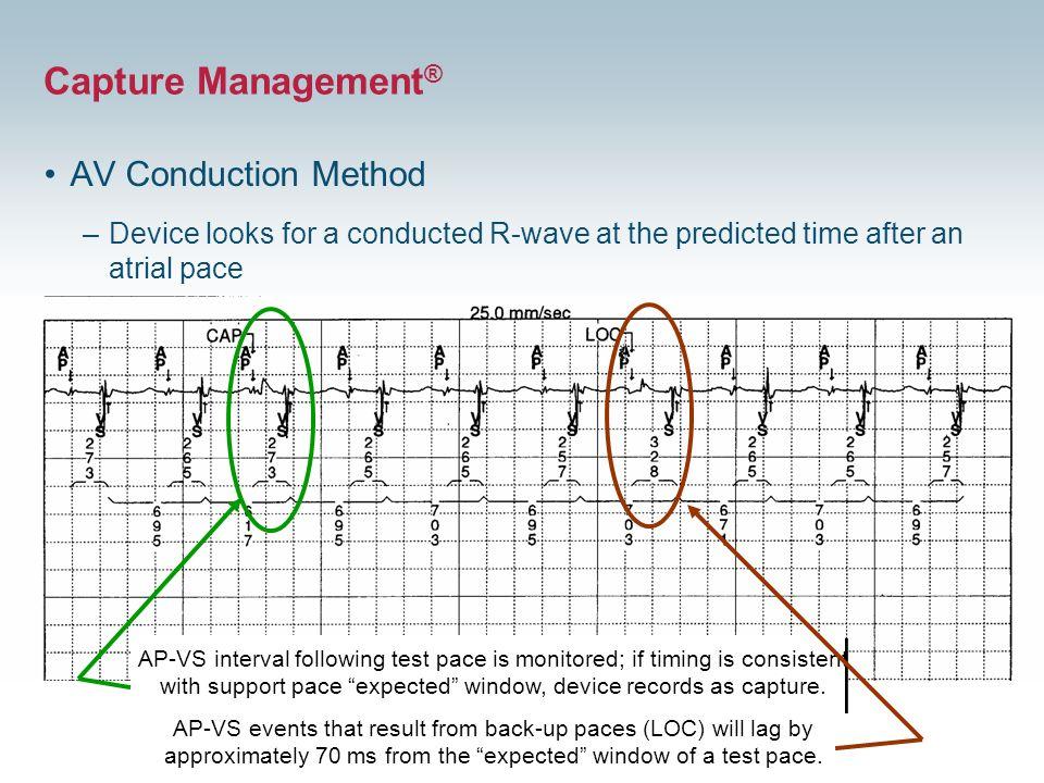 Capture Management® AV Conduction Method