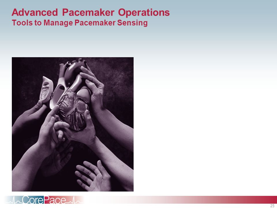 Advanced Pacemaker Operations Tools to Manage Pacemaker Sensing