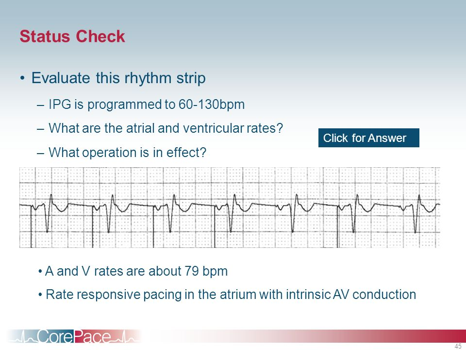 Status Check Evaluate this rhythm strip IPG is programmed to bpm