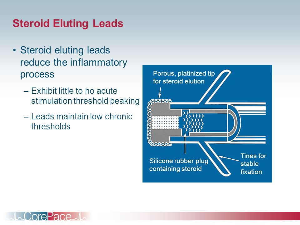 Steroid Eluting Leads Steroid eluting leads reduce the inflammatory process. Exhibit little to no acute stimulation threshold peaking.